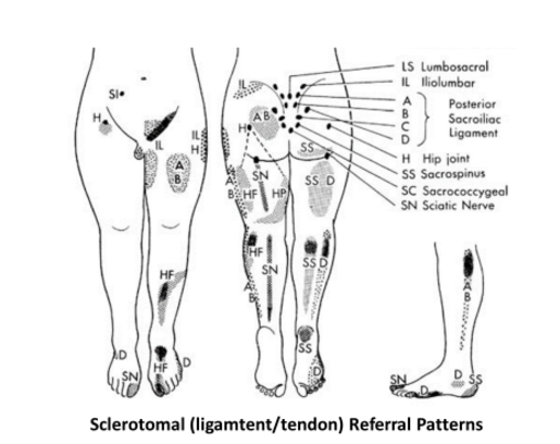 Sclerotomal (ligament/tendon) Referral Patterns