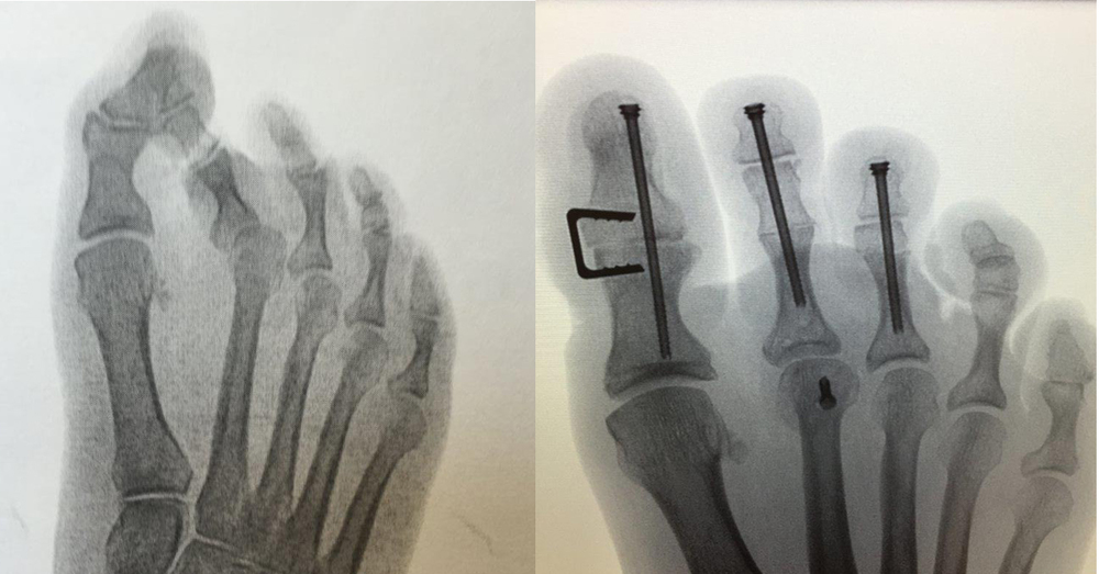Forefoot Surgery Hammertoe Headless Screw and Staple.jpg