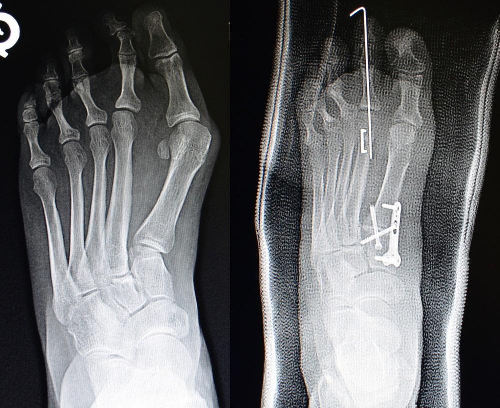 Foot  U0026 Ankle Plate System  U2014 Vilex