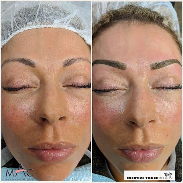 Welcome to 2018 with new Brows! Creative Touch Beauty offers the highest standards when it comes to Microblading and Permanent make-up. Look at this amazing before & right after microblading also using powdering technique. Client's request to have a gradual arch was granted...another happy lady! 😍 #microbladingartcenter #folsom #microbladingartcentersacramento #sacramento #granitebay #eldoradohills #microstrokes #featherstrokes #microblading #wakeupwithmakeup #microbladingtraining #creativetouchbeauty #alopecia #girlswithtattoos #eyebrows #brows #microbladingsanfrancisco #lipsmakeup #makeupmafia #transformation #makeupartist #permanenteyebrows #naturaleyebrows #microbladingfolsom #beautiful #microbladingmen #inspiration #makeup #permanentmakeup #sacramentomicroblading