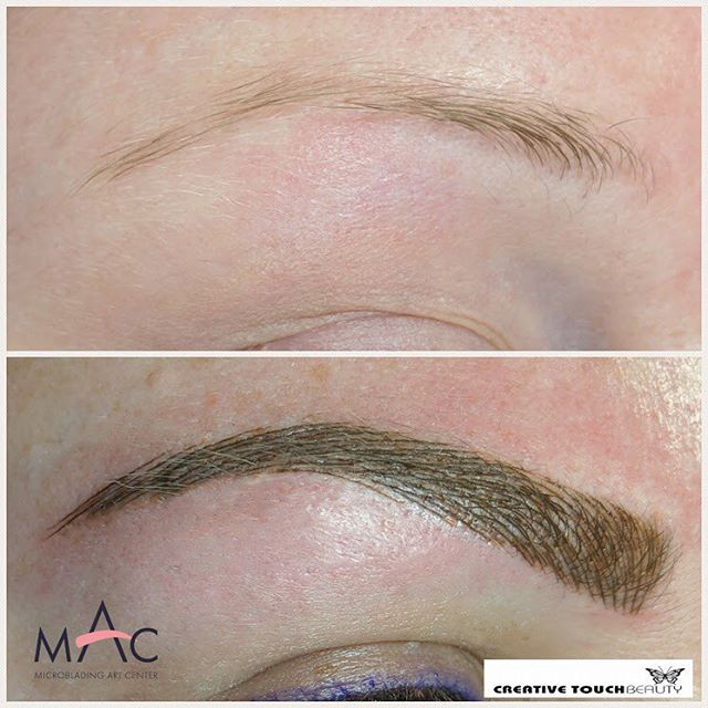 Say good bye to sad eyes! Microblading will give you the effect of the face lift! Ditch the pencil for something that will last you longer. Due to the colder weather now is the best time to have microblading brows. We'll give you the brows you've always dreamed of. Microblading can enhance your natural brows and give you a defined brows. Book your appointment at http://www.creativetouchbeauty.com or call (916) 571-2771 for more info. #microbladingartcenter #folsom #microbladingartcentersacramento #sacramento #granitebay #eldoradohills #microstrokes #featherstrokes #microblading #wakeupwithmakeup #microbladingtraining #creativetouchbeauty #alopecia #girlswithtattoos #eyebrows #brows #microbladingsanfrancisco #lipsmakeup #makeupmafia #transformation #makeupartist #permanenteyebrows #naturaleyebrows #microbladingfolsom #beautiful #microbladingmen #inspiration #makeup #permanentmakeup #sacramentomicroblading