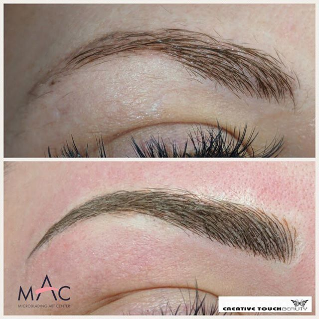Filling in sparse areas for this beauty! Microblading is a great solution to those missing brow hairs that just won't grow back! This client had tattooing done quite some time ago, now she has fresh beautiful and defined brows again! Book your appointment at http://www.creativetouchbeauty.com or call (916) 571-2771 for more info. #microbladingartcenter #folsom #microbladingartcentersacramento #sacramento #granitebay #eldoradohills #microstrokes #featherstrokes #microblading #wakeupwithmakeup #microbladingtraining #creativetouchbeauty #alopecia #girlswithtattoos #eyebrows #brows #microbladingsanfrancisco #lipsmakeup #makeupmafia #transformation #makeupartist #permanenteyebrows #naturaleyebrows #microbladingfolsom #beautiful #microbladingmen #inspiration #makeup #permanentmakeup #sacramentomicroblading