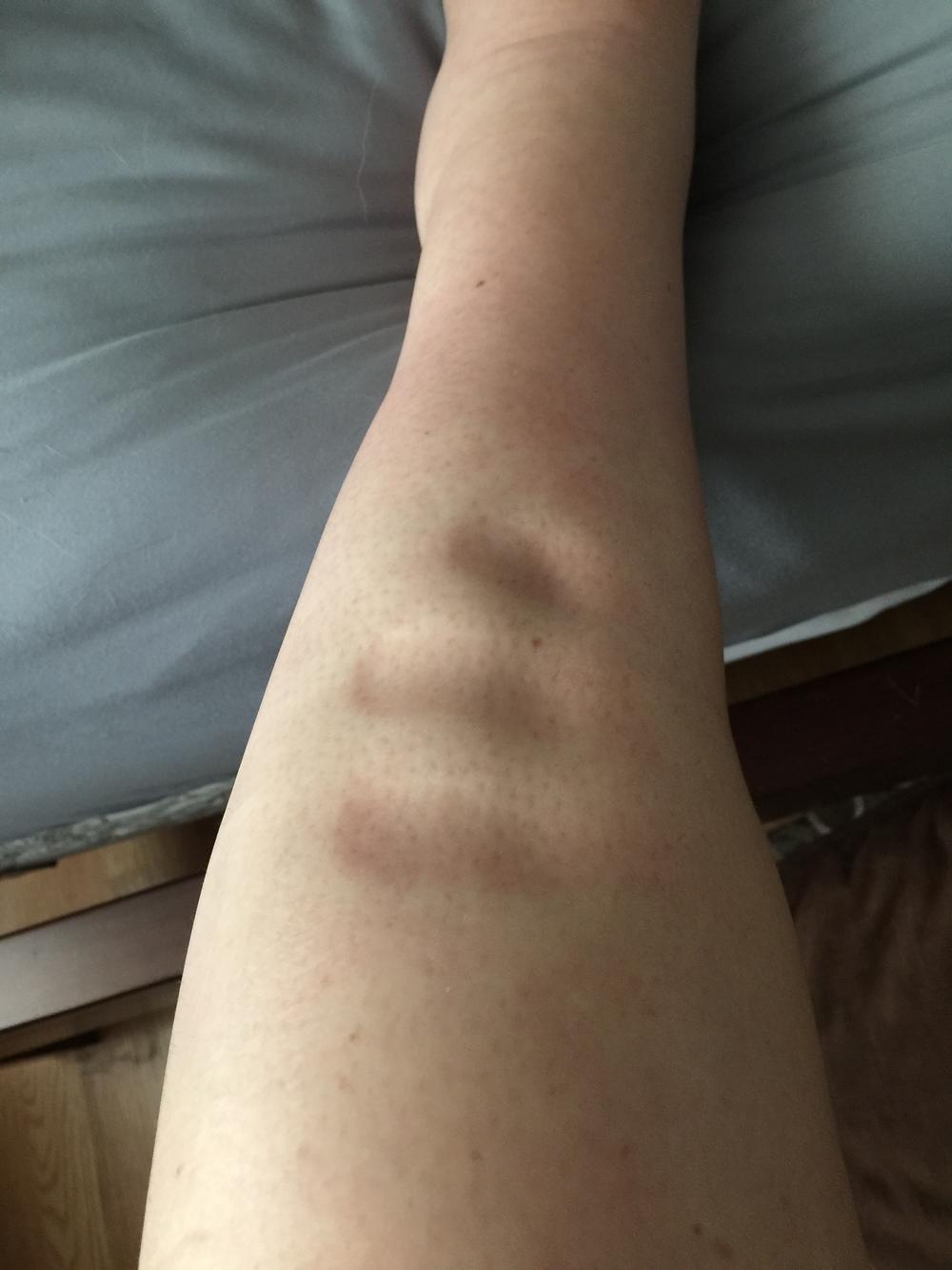 Shiny, squishy, impressionable edema skin!