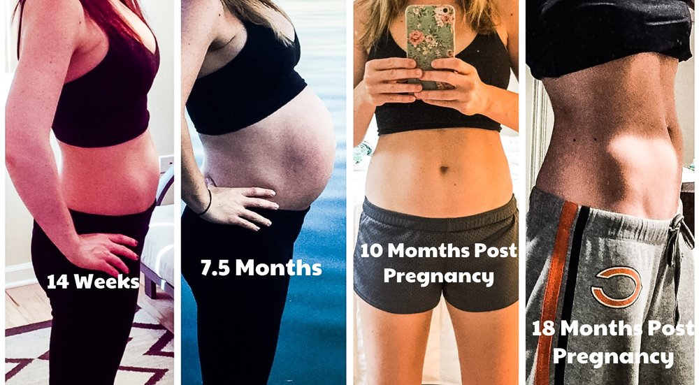 How pregnancy changes your body. Stretch marks after pregnancy.