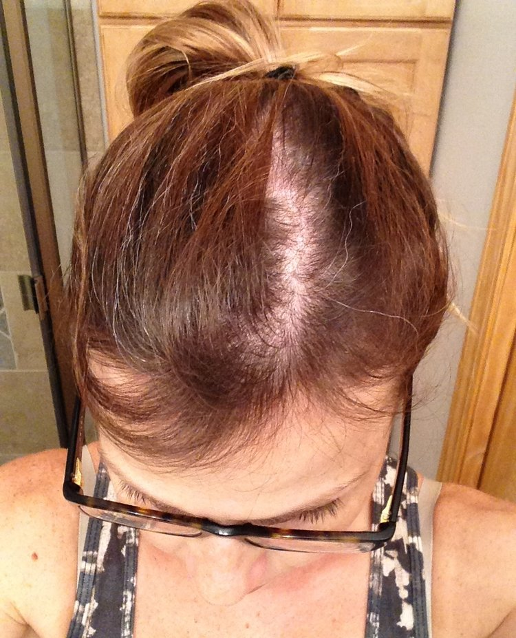 Bald after pregnancy. My hair was patchy and thin on the top of my head. I needed a solution for my postpartum hair loss.