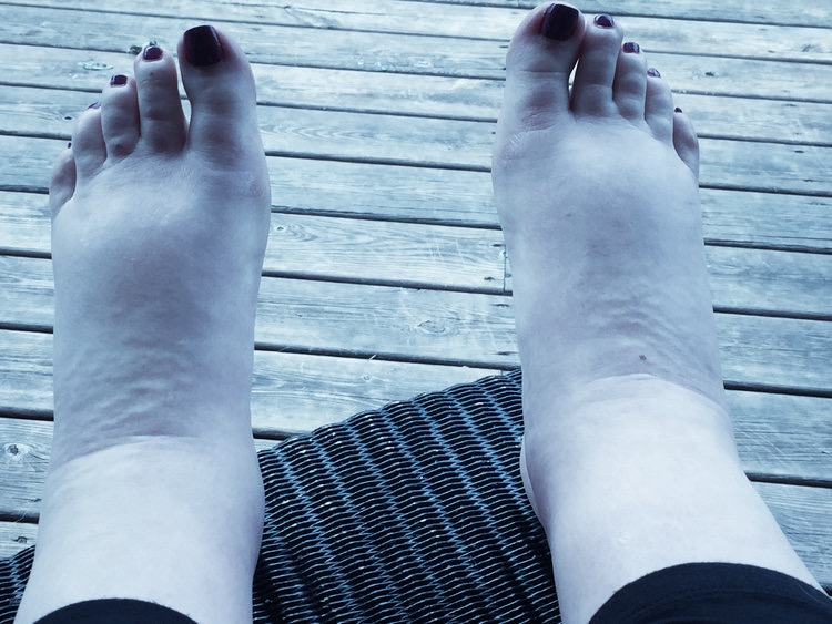 Pregnancy edema in the feet while pregnancy. Pregnancy edema can cause massive pregnancy swelling that is out of your control.
