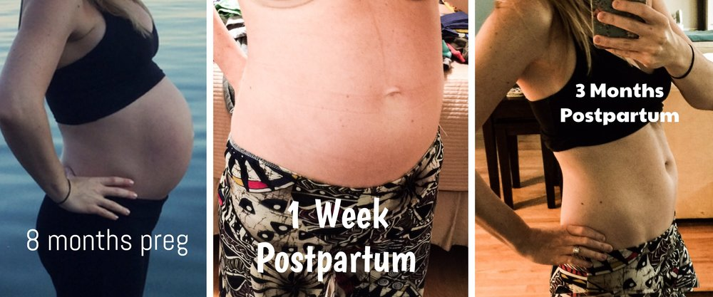 How to Minimize and Prevent Stretch Marks During Pregnancy