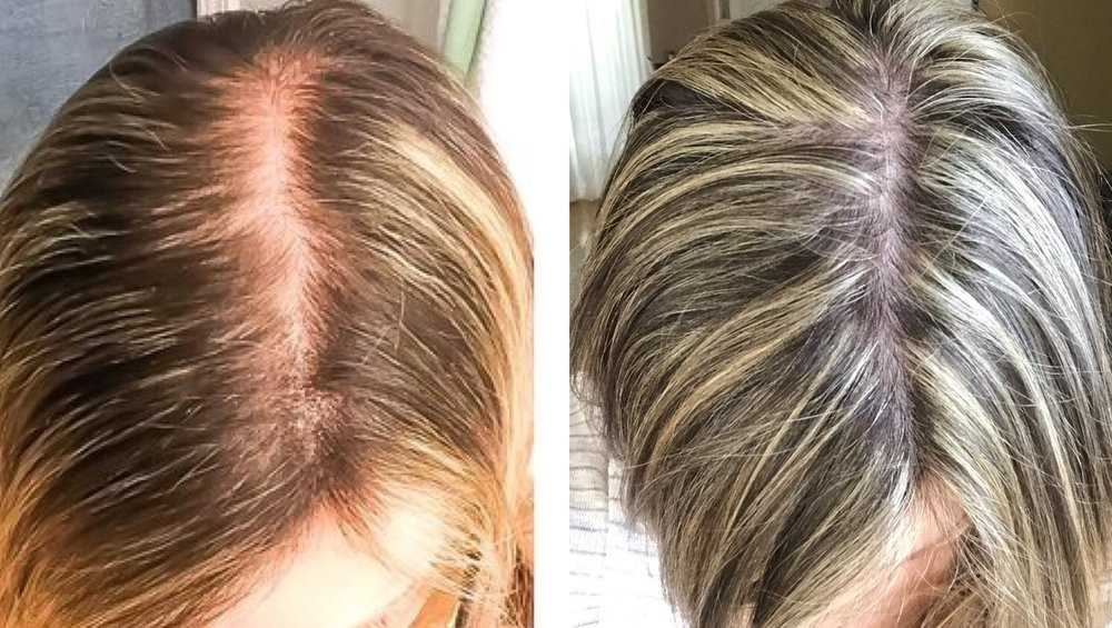 Pregnancy and hair loss. Postpartum hair loss.