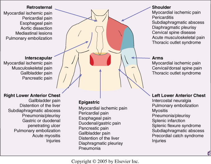 diagram of the chest and stomach diagram of chest pain