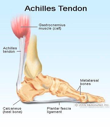 Back Running after Achilles Tendinitis