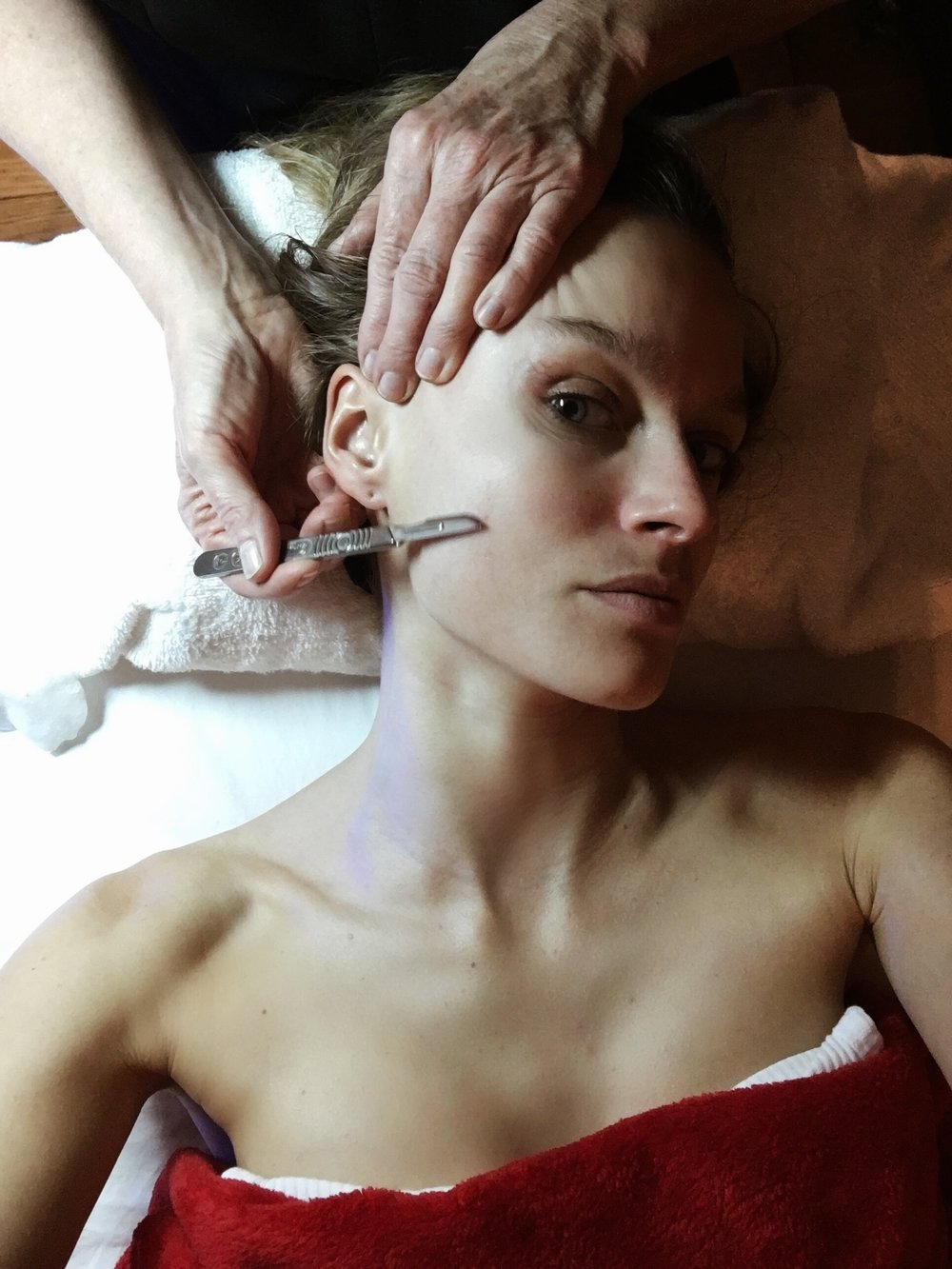 Dermaplaning - Just for demonstration: 'Dermaplaning' which is an effective exfoliating treatment in which a doctor or aesthetician uses a surgical scalpel to gently scrape off any dead skin cells on the surface of your skin