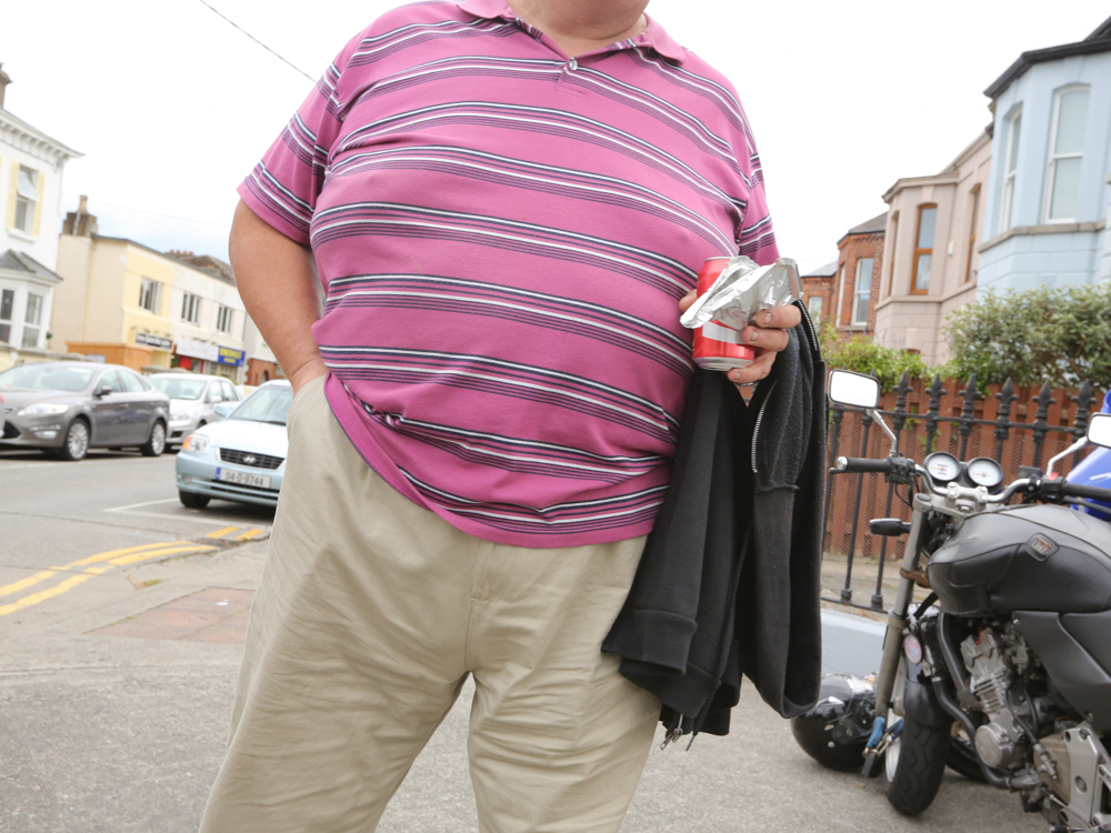Obesity in Ireland (26).jpg
