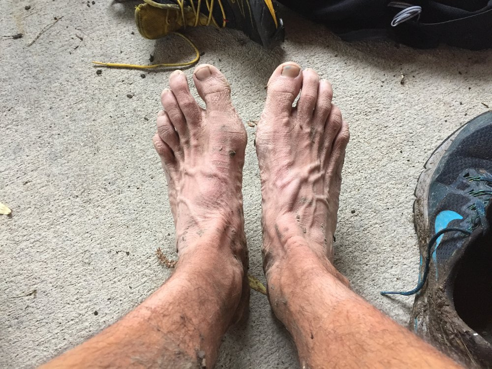 Pruned feet after 100 miles