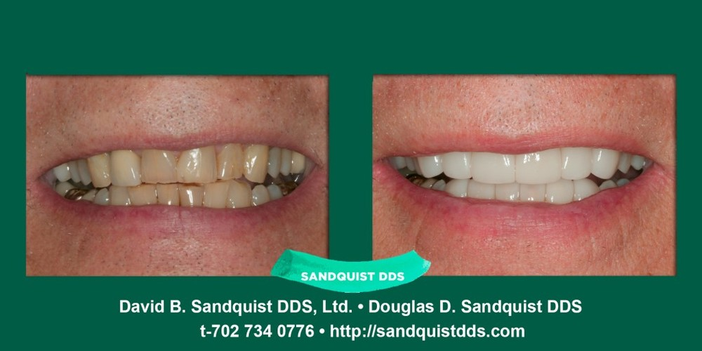 sandquist-sc.jpg