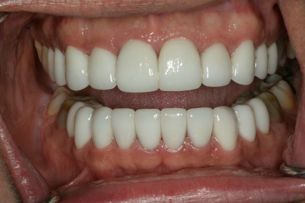 Clint's teeth after porcelain restoration.