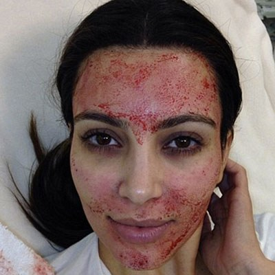 The famous image of kim kardashian after prp - applied by microneedling technique.
