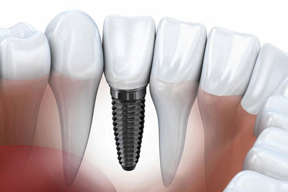 Implant + ceramic crown : from CHF 2500- (lab included)