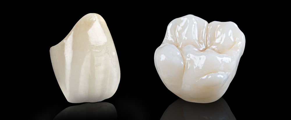 Ceramic crown : from CHF 1100-   (lab included)