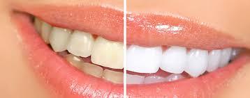 Blanchiment dentaire en cabinet avec lampe : CHF 600