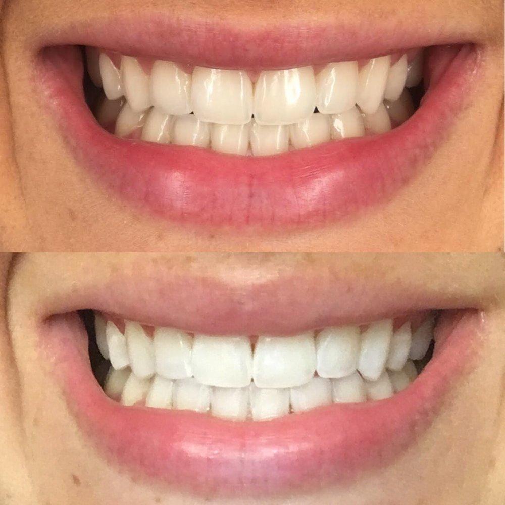 smilebrilliant