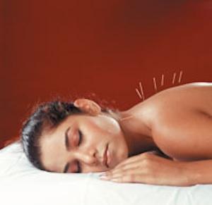 acupuncture-sleeping.jpg