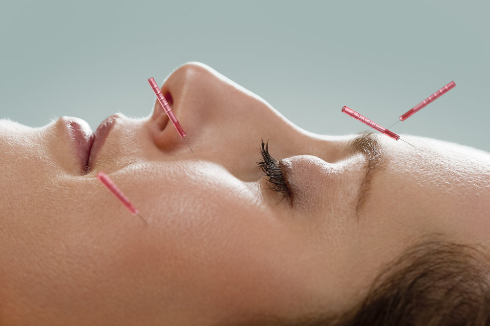 Cosmetic Acupuncture -