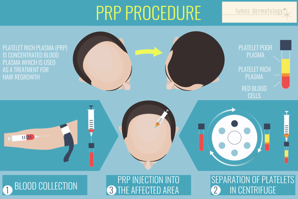 PRP procedure lumos dermatology.png