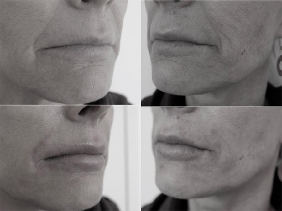 Lips B & A LR.jpg