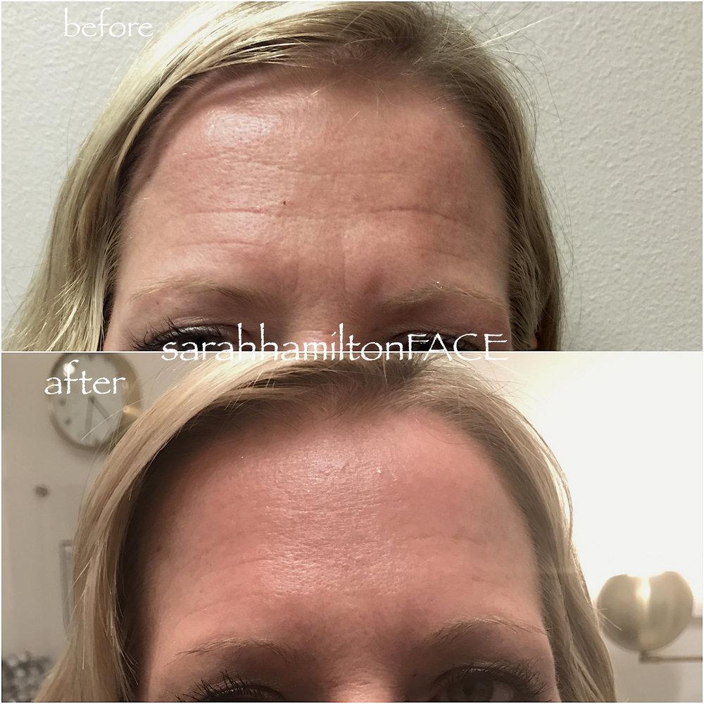 Botox Molly 2.jpg
