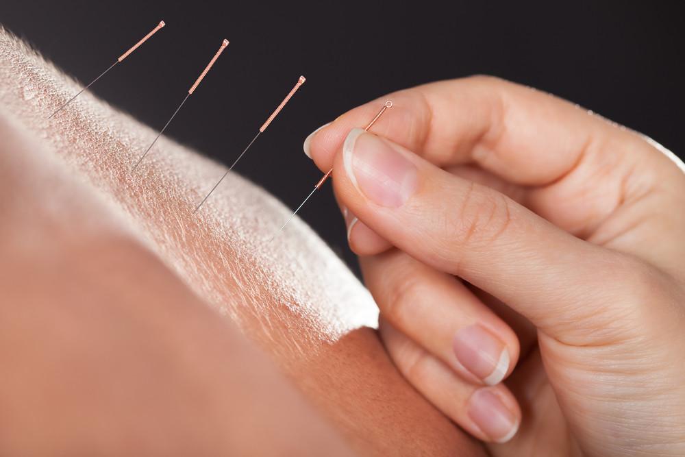 Acupuncture IMAGE 1.jpg