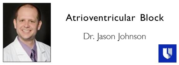 Atrioventricular Block.JPG