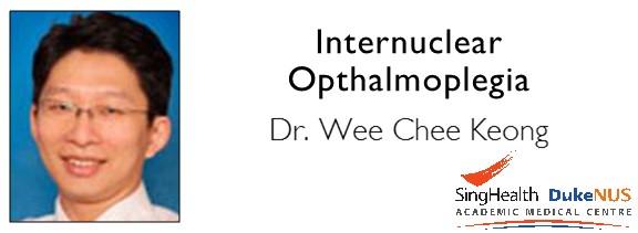 "<a href=""comments/2016/1/7/internuclear-opthalmoplegia"">Comment   </a> <a target=""_blank"" href=""s/Internuclear_Ophthalmoplegia.pdf"">Transcript</a>"