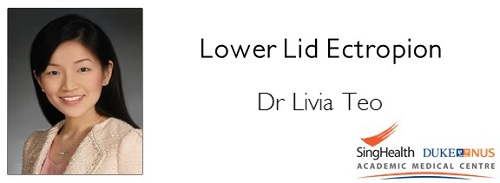 Lower Lid Ectropion.JPG