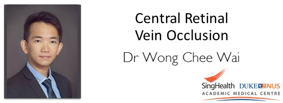 "<a href=""comments/2016/10/5/central-retinal-vein-occlusion"">Comment      </a> <a target=""_blank"" href=""s/central-retinal-vein-occlusion.pdf"">Transcript</a>"