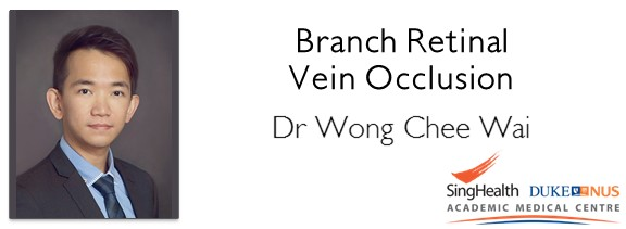 "<a href=""comments/2016/10/5/branch-retinal-vein-occlusion"">Comment      </a> <a target=""_blank"" href=""s/branch-retinal-vein-occlusion.pdf"">Transcript</a>"