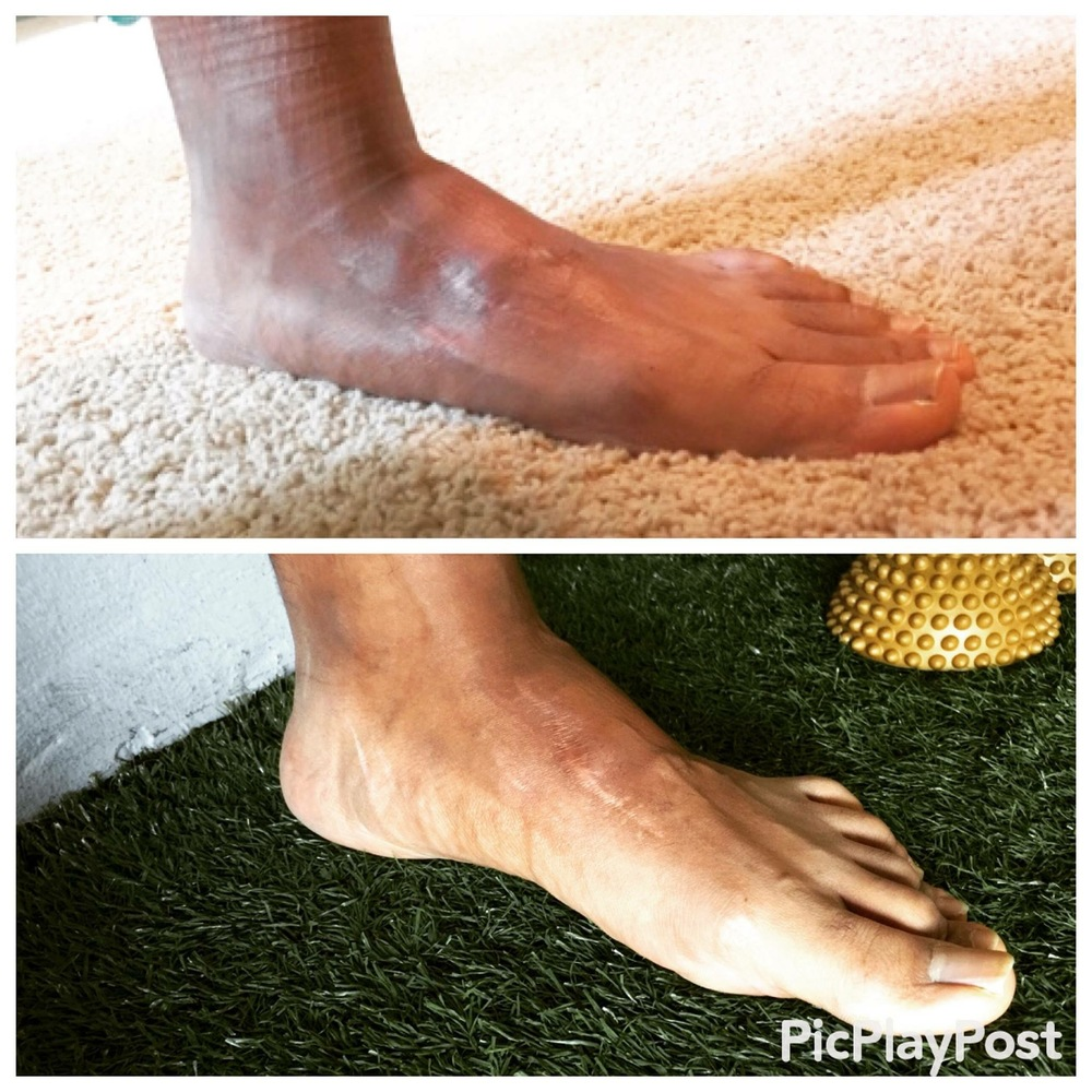 Build Healthy and Functional Feet with Yamuna Foot Fitness. Photo Credit: @VueTherapy