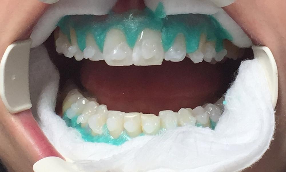 Whitening procedure