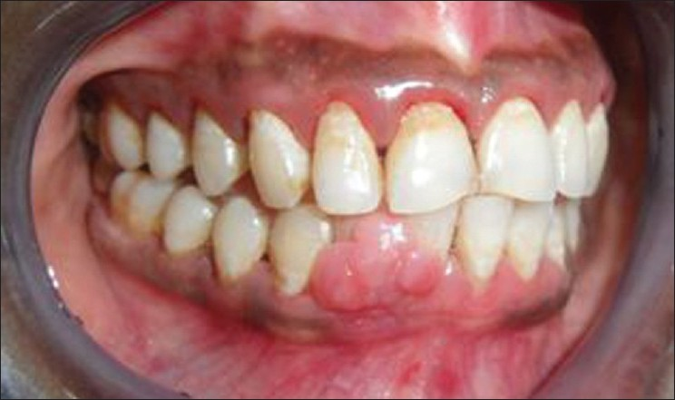 An example of a pyogenic granuloma (also known as a Pregnancy Tumor), a benign, reversible, oral condition seen during times of pregnancy.