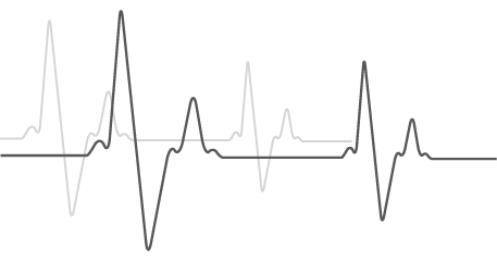 heartbeat-lines-grey.png