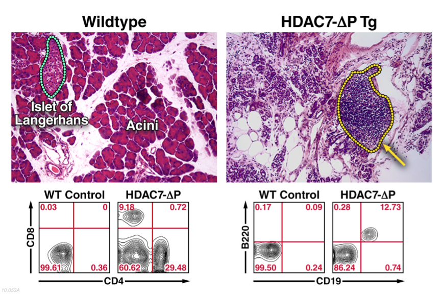 Prominent Exocrine Pancreatitis in a Gain-of-Function HDAC7 Mutant
