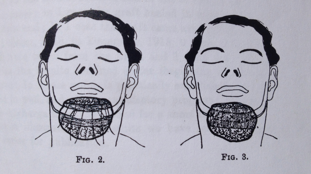 Figure 2 & 3