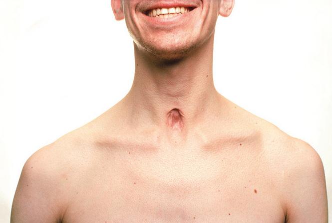 Selbstportraits nach 6 Monaten.   Bruch der linken Klavikula und Narbe durch Tracheal-Kanüle.