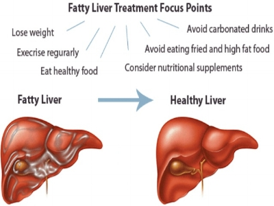 pathophysiology-of-liver-26-638.jpg