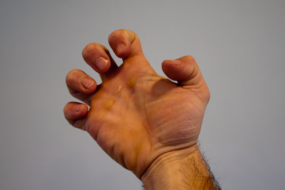 the claw finger stretch