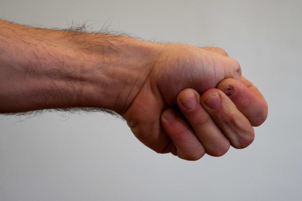 Thumb-in-Fist Wrist Stretch