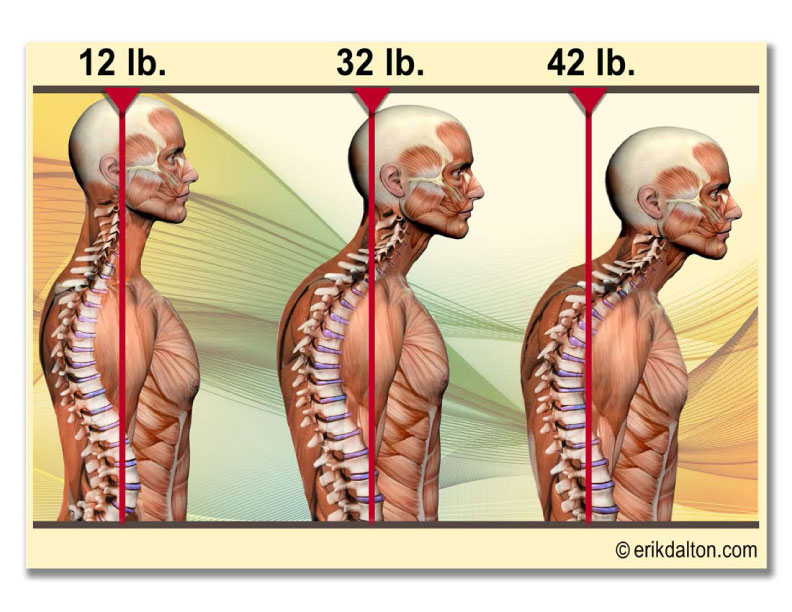 When you crane your head and neck forward to say, look at a computer screen, the muscles in your upper back strain to hold up the virtually added weight of your head. The more horizontal alignment of your neck vertebrae cause your head to position itself back so you can see what you want to look at in front of you, causing the muscles in the neck to shorten as well. You can also see what this does to the mid and lower back, which further affects the rest of your body and how it functions as a whole. You can avoid this by keeping an awareness or a mindfulness of your body and posture, especially while you are sitting at work or in your daily commute.