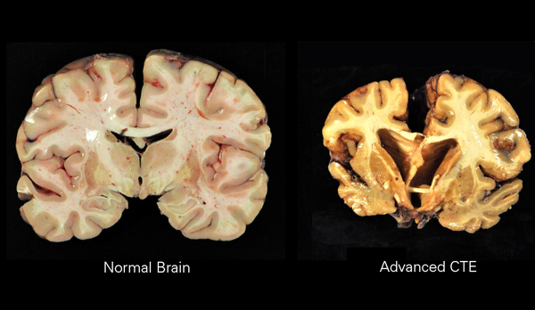 Brain at right shows the effects of c hronic traumatic encephalopathy, which presents itself in people who have suffered repeated blows to the head, as is common in football.