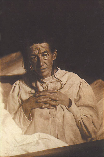 Alois Alzheimer's patient  Auguste Deter  in 1902. Hers was the first described case of what became known as Alzheimer's disease.