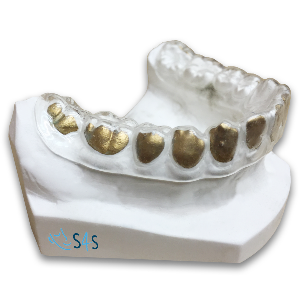 Whitening trays-S4S dental
