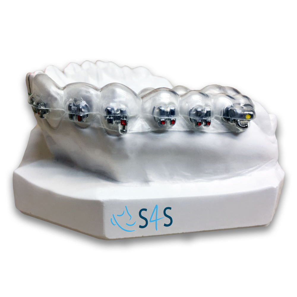 Indirect bonding system - S4S dental